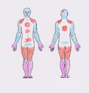 Beccy body areas 1